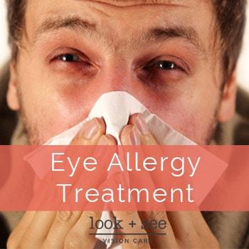 Eye Allergy Treatment