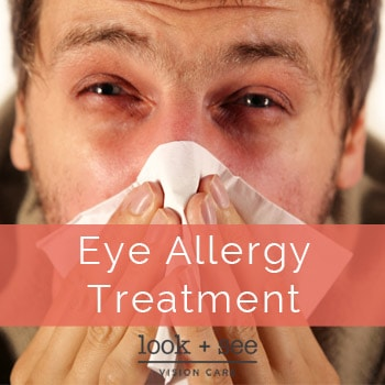 Eye Allergy Treatment