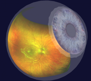 Optomap imaging