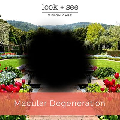 Macular Degeneration Vision